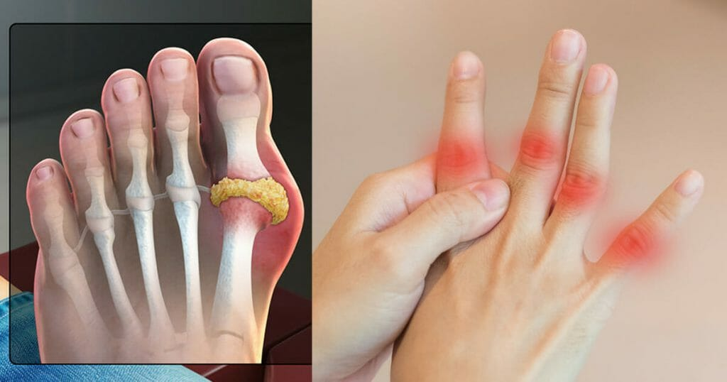 Ayurvedic Gout Treatment, Lifestyle and Diet