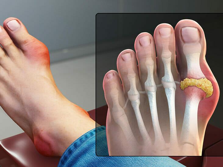 Ayurvedic Gout Treatment